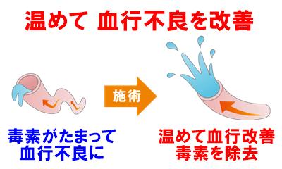 血行不良を改善