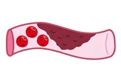 血行不良:血管